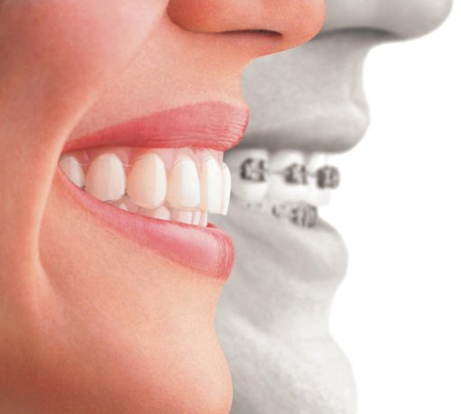 Cosmetic Dentistry, Thamesmead