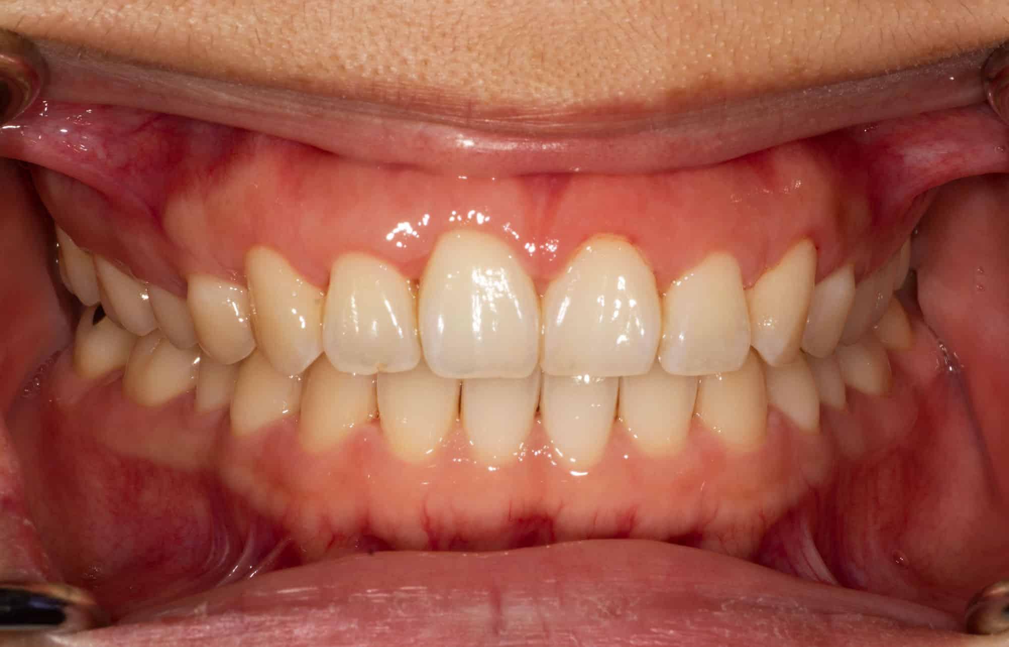 Gum disease | Gallions Reach Dental Clinic